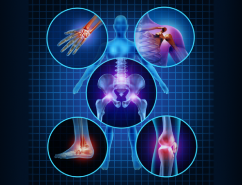 how medical cannabis helps arthritis